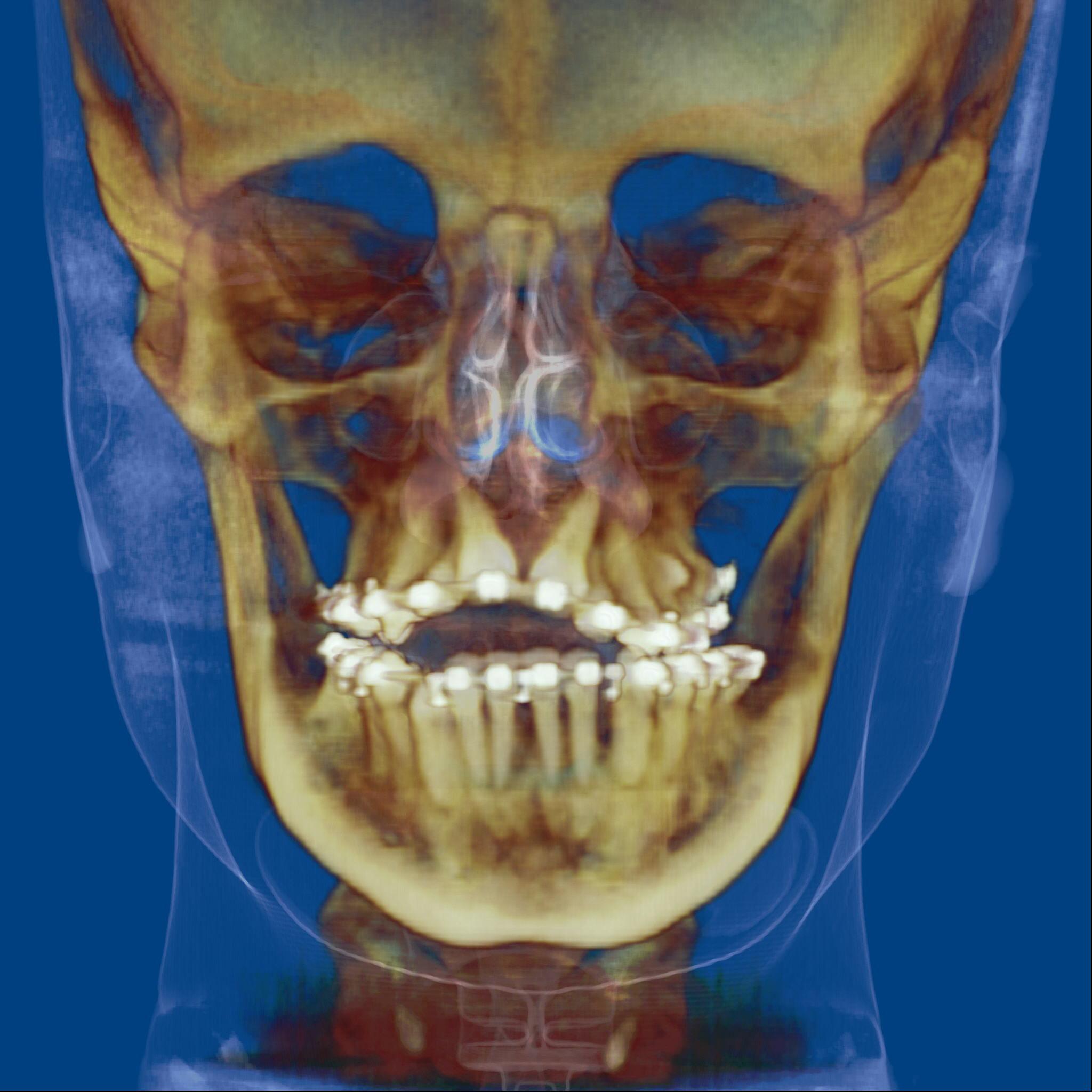 Servicios radiolog a dental 3d for Paredes orbitarias